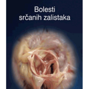 bolesti-srcanih-zalistaka